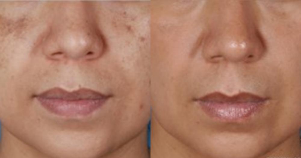 borttagning av pigmentfläckar i ansiktet