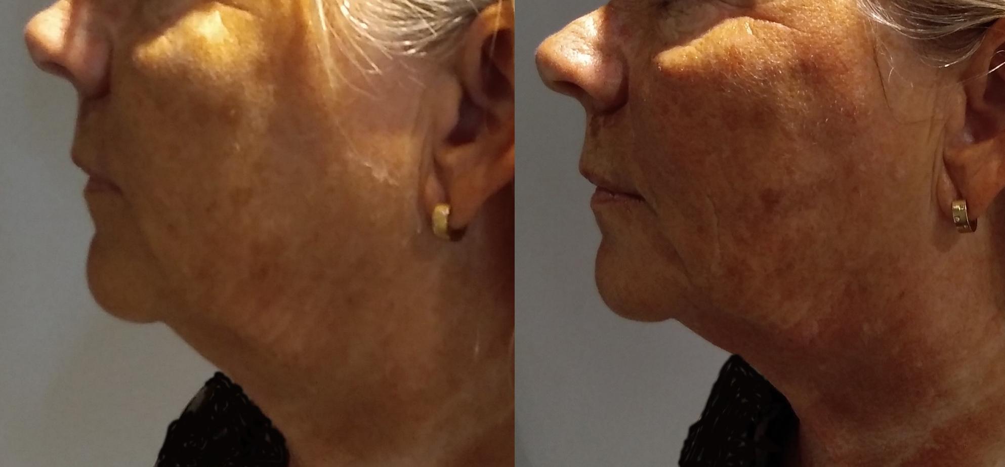 HIFU ansikte före och direkt efter. Hals, haka, kinder och mun har det redan skett en stor förbättring på!