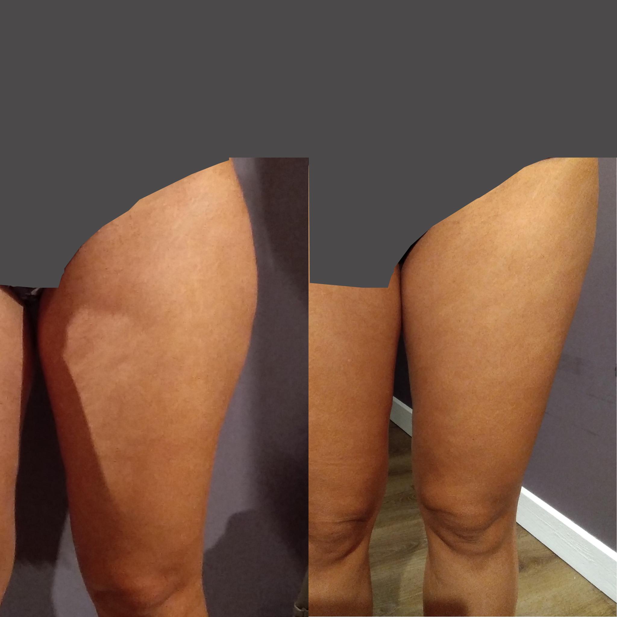 HIFU fettreducering utsida lår- resultat direkt efter