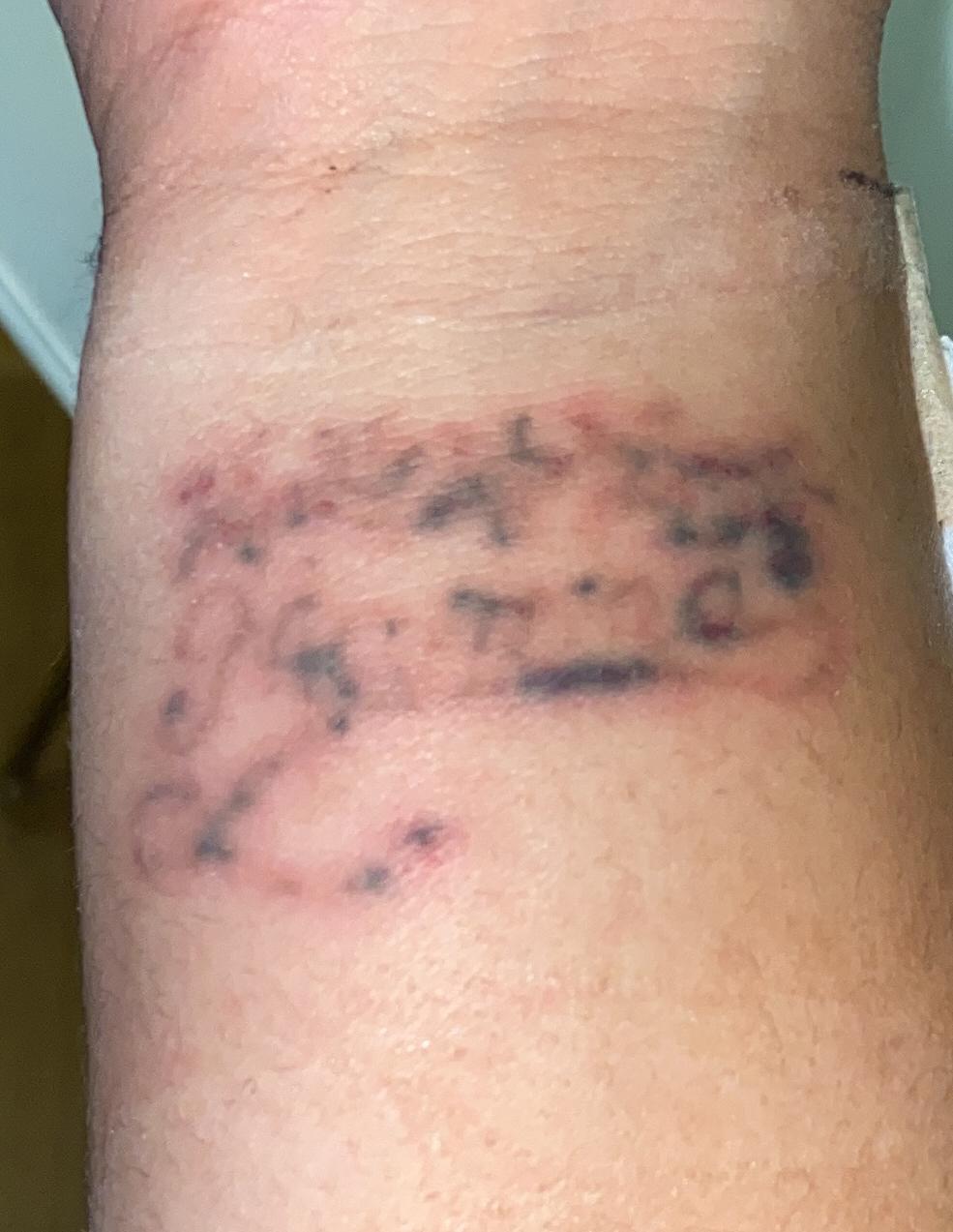 Tatuering efter, close up