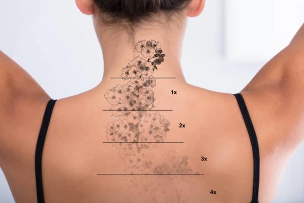 tattoo-removal-sessions-progress-photo-600x400.jpg